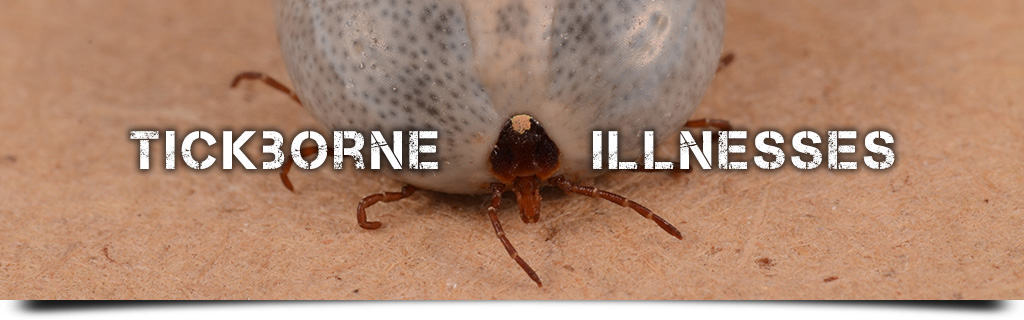 Tickborne Illnesses - Lyme Disease, Anaplasmosis, Powassan, Heartland, Alpha-Gal, etc.
